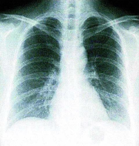 同じ患者の肺のエックス線画像(上)とCT画像(下)。エックス線画像では正常だったが、CT画像で右の肺(矢印の部分)に早期のがんが見つかった
