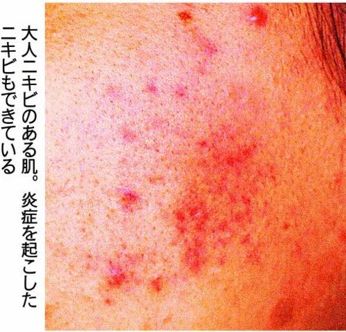 大人ニキビのある肌。炎症を起こしたニキビもできている