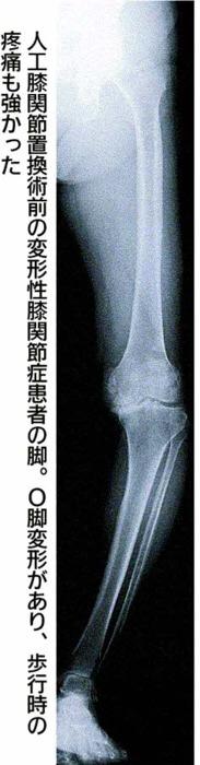 人工膝関節置換術前の変形性膝関節症患者の脚。O脚変形があり、歩行時の疼痛も強かった