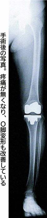 手術後の写真。疼痛が無くなり、O脚変形も改善している