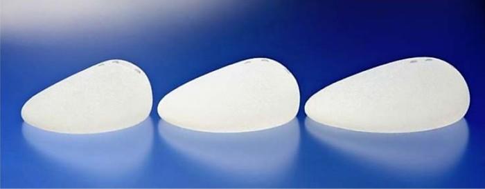 「しずく形」の人工乳房(アラガン・ジャパン提供)