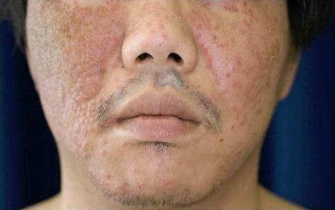 顔全体に広がったカポジ水痘様発疹症。アトピー性皮膚炎があると発症しやすい