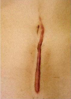 帝王切開から数年経過した肥厚性瘢痕