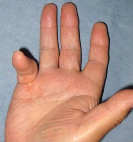 デュピュイトラン拘縮の症例(佐藤信隆医師提供)