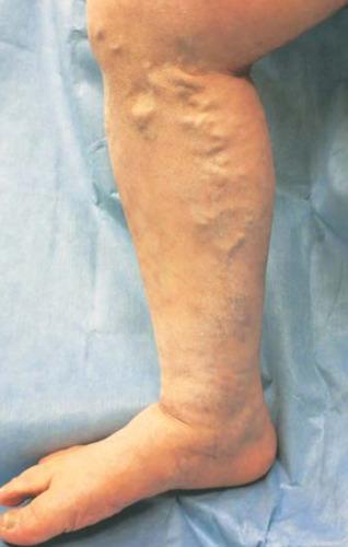 血管のうねりや蛇行によってできた下肢静脈瘤